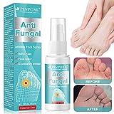 Athletes Foot Spray, Spray para pies, Pies Fungus Treatment, Pies Treatment, Ayuda a tratar y restaurar la apariencia del pie infectado con hongos