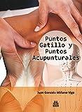 Puntos gatillo y puntos acupunturales (Color) (Medicina)